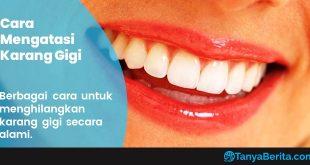 Cara Menghilangkan Karang Gigi Secara Alami, Mudah dan Ampuh